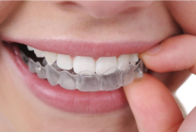 Clear Correct Aligners