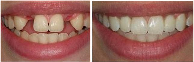 Ocala Lady Lake FL Dental Implants