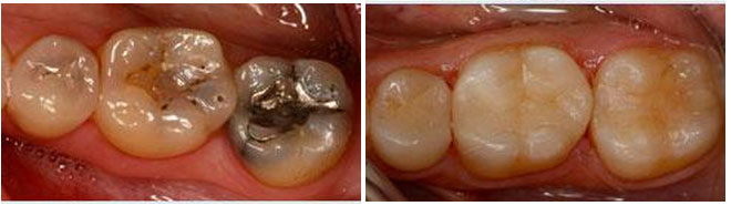 Metal Free Fillings