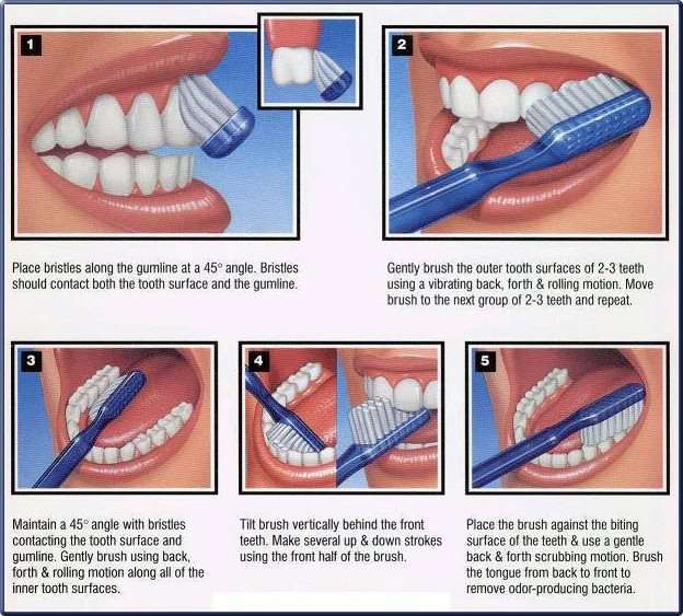 How-to-Brush-Teeth-Properly
