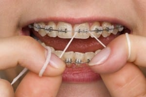 braces-flossing-1a